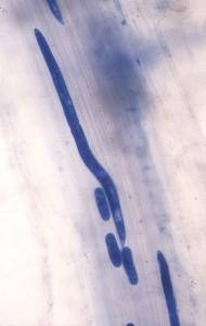 Root-lesion nematode